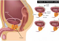 HOW TO: Fight Post Prostate Surgery Impotence