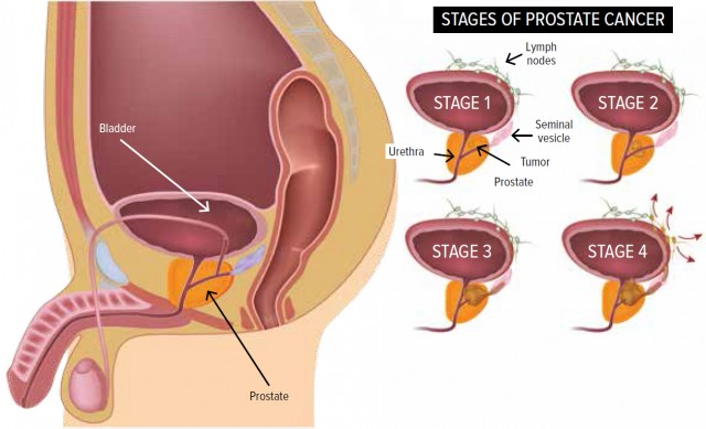 sex after prostate surgery using pump